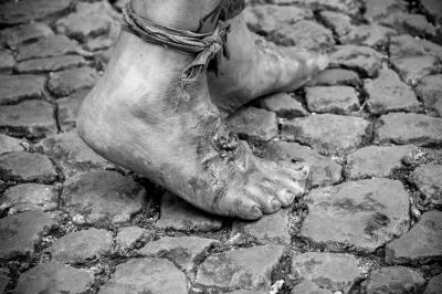 The foot Beggar
